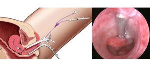 Можно ли вылечить полип эндометрия без операции, гормональными препаратами?