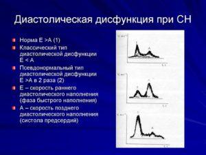 МН 1 степени, ТН 1 степени. Диастолическая дисфункция ЛЖ - 1 тип