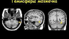 Объемное образование в правой гемисфере мозжечка