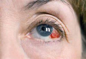 Красные капилляры в глазах у ребёнка 2,8 лет