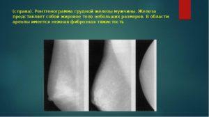 Фиброзные тяжистости