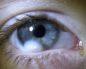 Яркие пятна в правом глазу при моргании