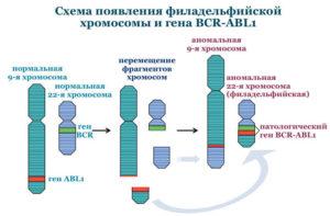 ОЛЛ с филадельфийской хромосомой
