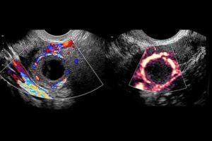 Два желтых тела при беременности