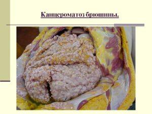 Канцероматоз брюшной полости