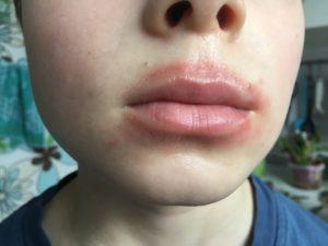 Покраснение вокруг губ у ребенка