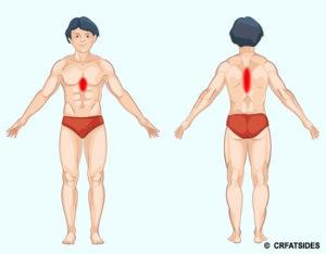 Проблема с правой стороной тела. Боль