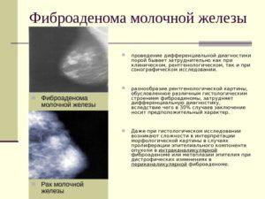 Фиброаденома или гиперплазия?