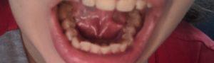 Чёрное пятно под языком