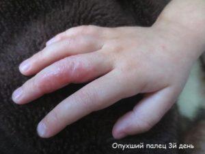 Палец опух и чешется