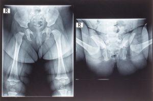 Дисплазия рентген расшифровка