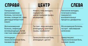 Болит живот слева от пупка и вздутие