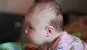 Плоский затылок у ребёнка в 4 месяца