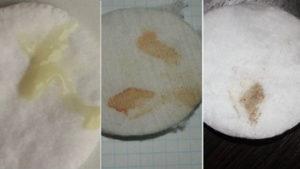 Кремовые белые выделения вместо месячных