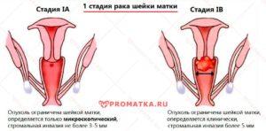 Рак шейки матки 1 А стадии