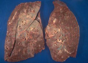 Саркоидоз или онкология