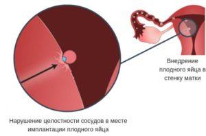 Задержка при эндометриозе