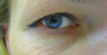 Морщинки вокруг глаз в 30 лет