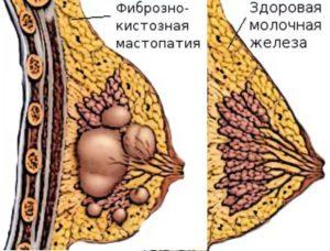 Шишки в груди после кормления
