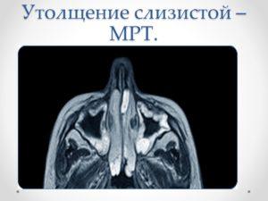 Утолщение слизистой верхнечелюстной на МРТ