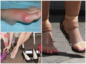 После ношения неудобной обуви болит палец на ноге
