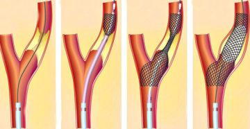 Реканализация вен после тромбоза