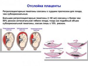 Ретрохориальная гематома и отслойка плаценты