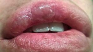 Пузырь на губе снаружи