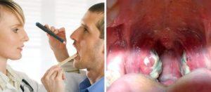 При пмс рецидив тонзилита, перерос в ангину вмесячные
