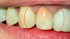 Оранжевый налет на зубах