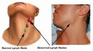 Воспален подчелюстной лимфоузел более года, боль в шее