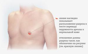 Уплотнение в соске у мужчины и болезненность