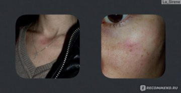 Аллергия на мильгамму