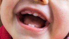 Лимфоузел восполился при прорезывании зуба