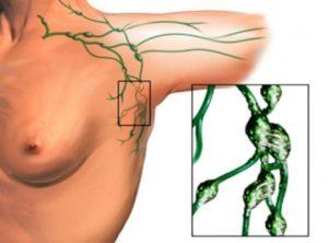 Могут ли у здорового человека прощупываться подмышечные лимфоузлы?