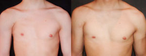 Недоразвитие груди