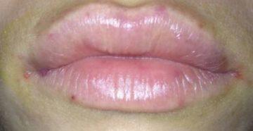 После увеличения губ появились точки