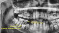 Нет зачатков коренных зубов