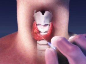 Боль в глотке после биопсии щитовидной железы