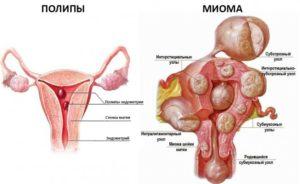 Полип эндометрия и миома
