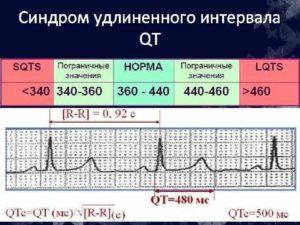 Удлиненный Qt у ребенка