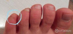 Ноготь на мизинце ноги растет вверх (в толщину)