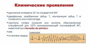 Что такое удлинение корригированного QT-интервала?
