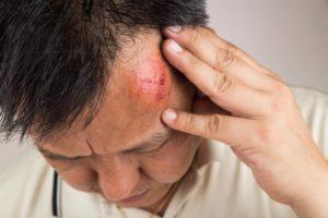 Подташнивает и знобит после удара головой