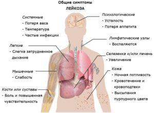 Как начинается рак крови?