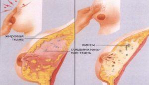 Одна грудь болит перед месячными из за уплотнения