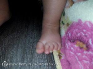 Беспокойный ребенок 1 год, поджимает пальчики на ногах