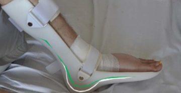 Можно ли самому снять лангету после перелома стопы