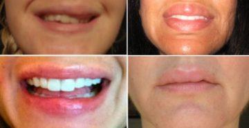 Фиброз после введения филлера в губы