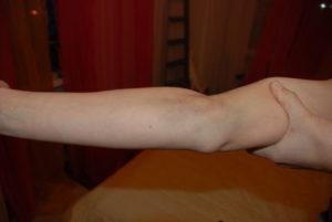 Боль в руке после взятия крови из вены